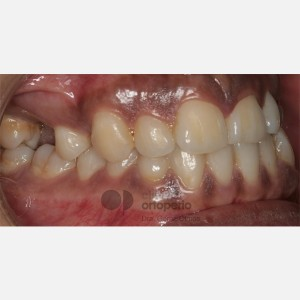 Lingual Orthodontics. Impacted canines. Multidisciplinary case: Orthodontic treatment and Implants 7
