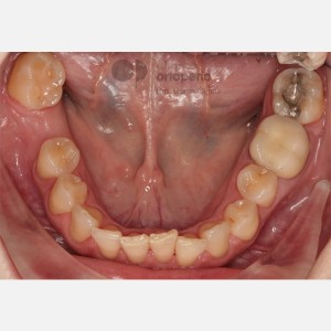 Lingual Orthodontics. Multidisciplinary case: Orthodontic treatment and Implants. Class II/2. Deep overbite 7