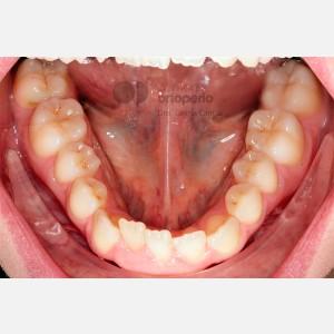 Ortodoncia lingual. Re-tratamiento de ortodoncia 5
