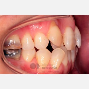 Ortodoncia Lingual. Mordida abierta, apiñamiento severo. Injerto encía 7