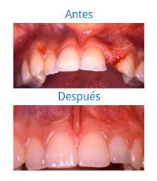 Implantes 6