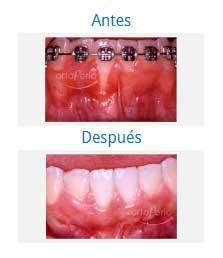 periodontics 6
