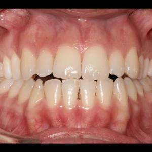 Ortodoncia Lingual. Tratamiento de una maloclusión compleja de clase III y mordida abierta en paciente adulto. 8