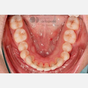 Severe overcrowding. Lingual Orthodontics without extractions. Stripping 6