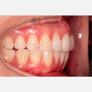 Ortodoncia Lingual. Apiñamiento 8