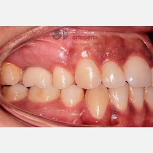 Ortodoncia Lingual. Caninos Incluidos. Caso Multidisciplinar: Ortodoncia e Implantes 8