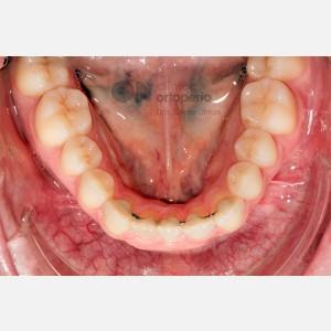 Ortodoncia lingual. Re-tratamiento de ortodoncia 6