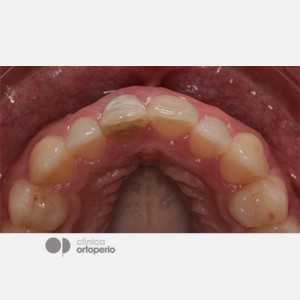 Corticotomy + Lingual Orthodontics + Post-extraction immediate implant 8