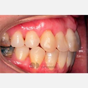 Ortodoncia Lingual. Mordida abierta, apiñamiento severo. Injerto encía 8