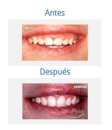 periodontics 7