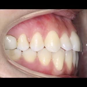 Ortodoncia Lingual. Tratamiento de una maloclusión compleja de clase III y mordida abierta en paciente adulto. 9