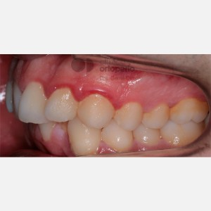 Severe overcrowding. Lingual Orthodontics without extractions. Stripping 7