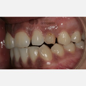 Lingual Orthodontics. Impacted canines. Multidisciplinary case: Orthodontic treatment and Implants 9