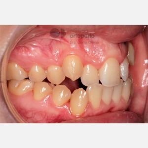 Ortodoncia Lingual. Clase III, Mordida Abierta, Apiñamiento severo, Extracciones 7