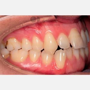 Ortodoncia lingual. Re-tratamiento de ortodoncia 7