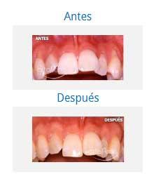 periodontics 8