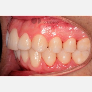 Severe overcrowding. Lingual Orthodontics without extractions. Stripping 8