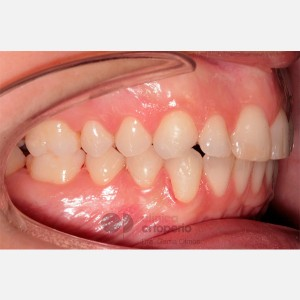 Lingual Orthodontics. Overbite excess, gingival smile, mild upper overcrowding 8