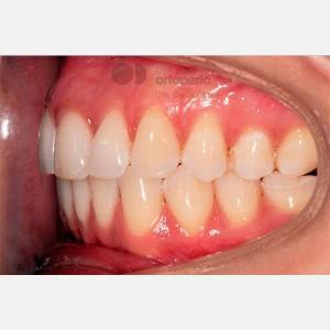 Ortodoncia Lingual. Apiñamiento 10
