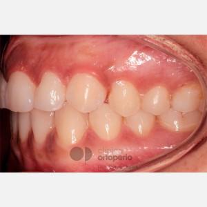 Ortodoncia Lingual. Caninos Incluidos. Caso Multidisciplinar: Ortodoncia e Implantes 10