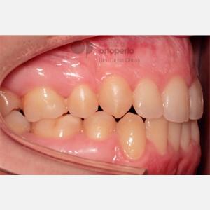 Ortodoncia Lingual. Clase III, Mordida Abierta, Apiñamiento severo, Extracciones 8