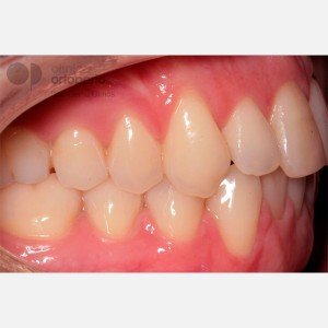 Lingual Orthodontics. Orthodontic re-treatment 8