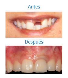Implants 8