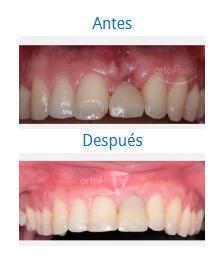 Implants 9