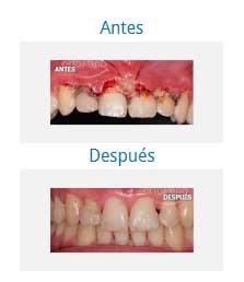 periodontics 9