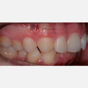 Severe overcrowding. Lingual Orthodontics without extractions. Stripping 9
