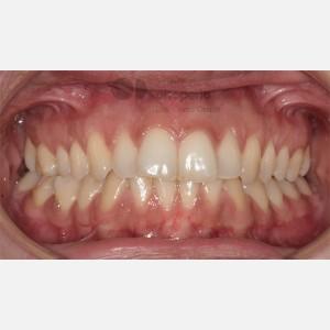 Ortodoncia Lingual. Apiñamiento 11
