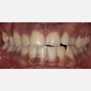 Lingual Orthodontics. Impacted canines. Multidisciplinary case: Orthodontic treatment and Implants 11