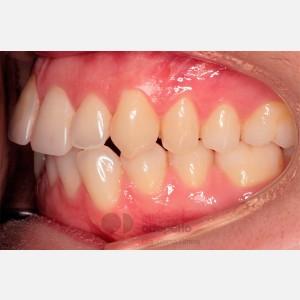 Ortodoncia lingual. Re-tratamiento de ortodoncia 9