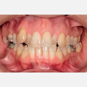 Ortodoncia Lingual. Mordida abierta, apiñamiento severo. Injerto encía 11