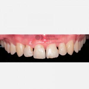 Porcelain veneers after aggressive periodontitis healing 1