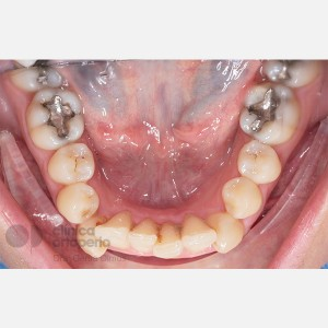 Lingual Orthodontics. Impacted canine. Asymmetric extraction in the lower arch 1
