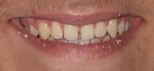 Porcelain veneers to solve diastema (gap between teeth) 1