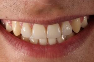 Porcelain veneers to solve diastema (gap between teeth) 2