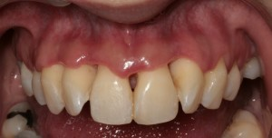 Porcelain veneers to solve black triangles caused by bone and gum loss due to periodontal disease 1