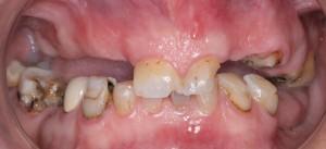 Colocación de implantes dentales sin cirugía 1