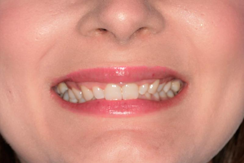 Diseño Digital de la Sonrisa 2