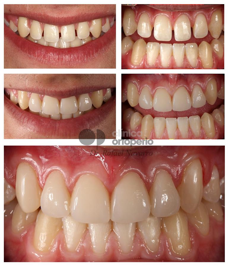 Porcelain veneers to solve diastema (gap between teeth) 3