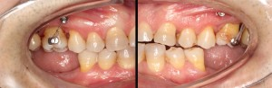 Molar intrusion with micro-implants, without orthodontic appliances 2