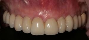 Colocación de implantes dentales sin cirugía 2