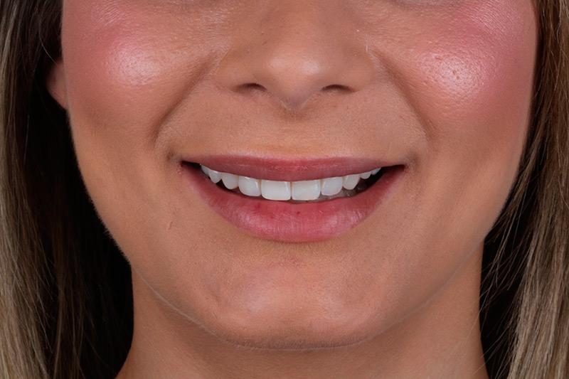 Diseño Digital de la Sonrisa 3