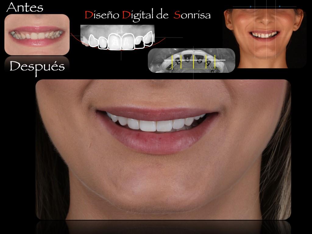 Diseño Digital de la Sonrisa 1