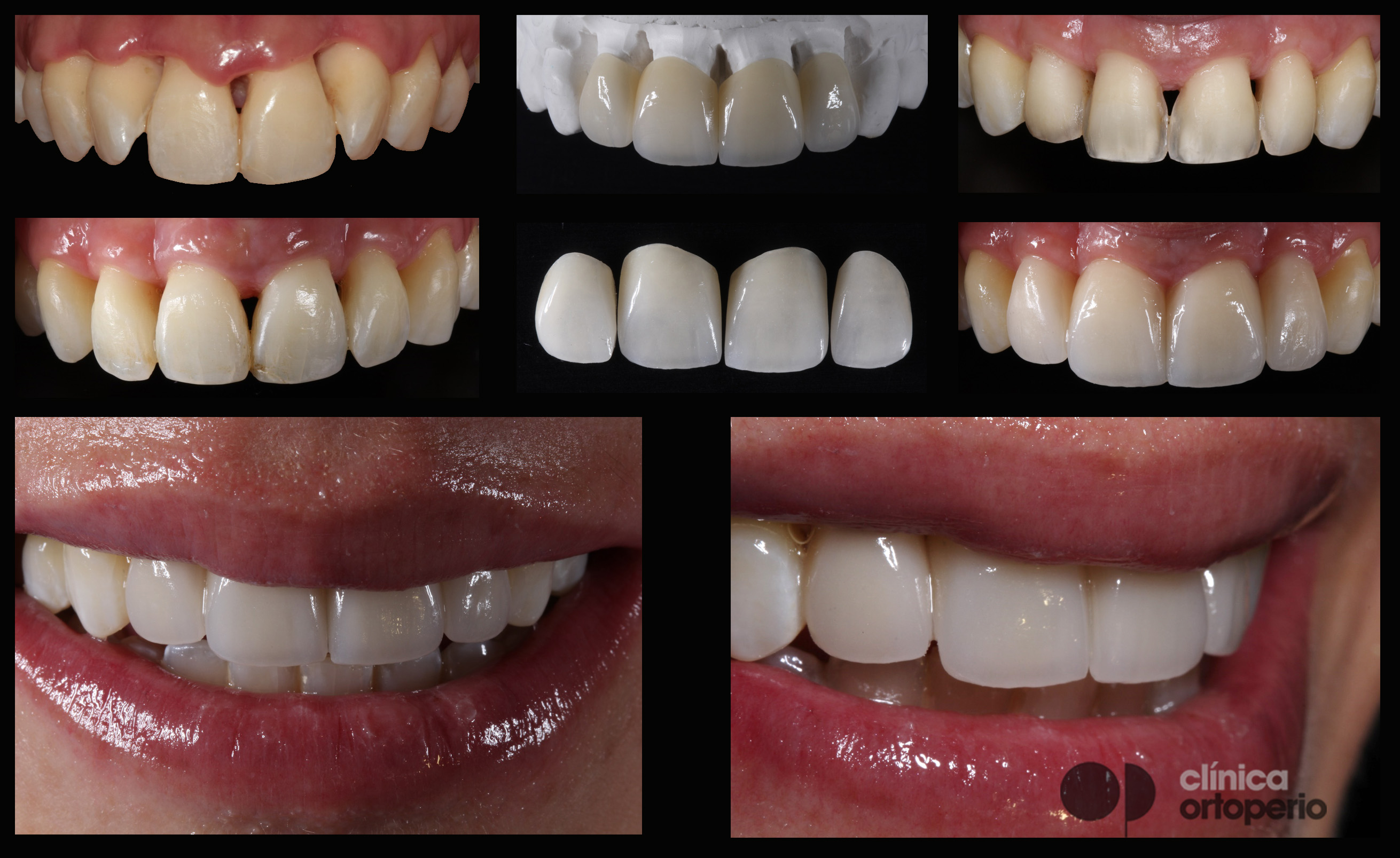 Porcelain veneers to solve black triangles caused by bone and gum loss due to periodontal disease 3