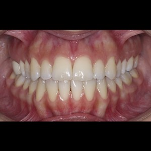 Lingual Orthodontics. Treatment of complex malocclusion class III and open bite in adult patient 2