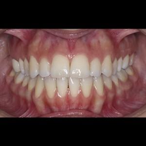 Ortodoncia Lingual. Tratamiento de una maloclusión compleja de clase III y mordida abierta en paciente adulto. 2