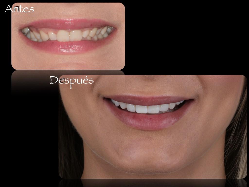 Diseño Digital de la Sonrisa 4